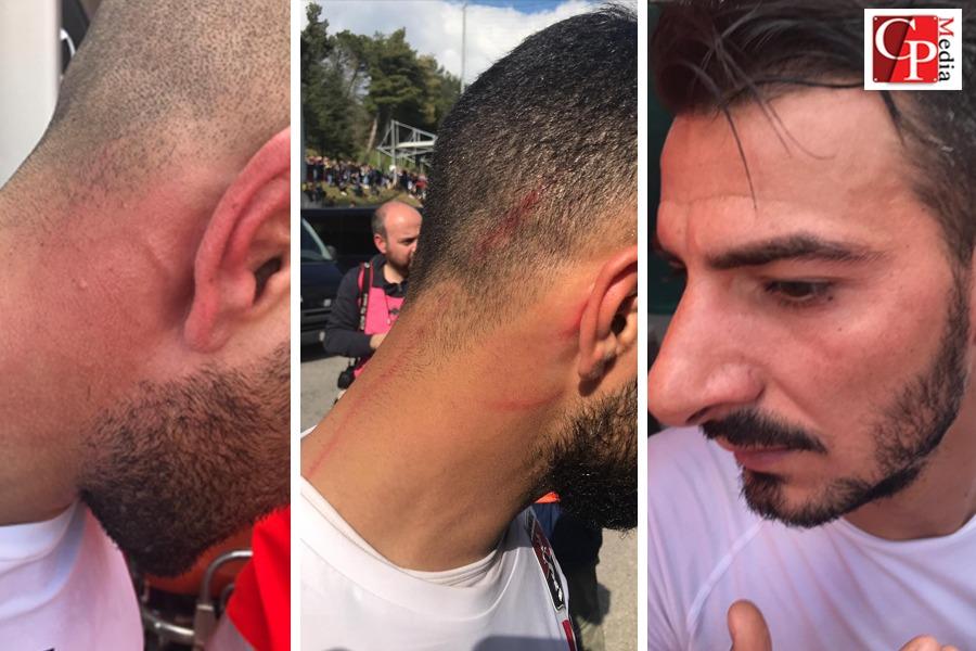 Picerno -Taranto: aggrediti tre rossoblu